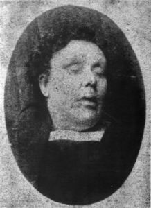 Annie Chapman mortuary photo